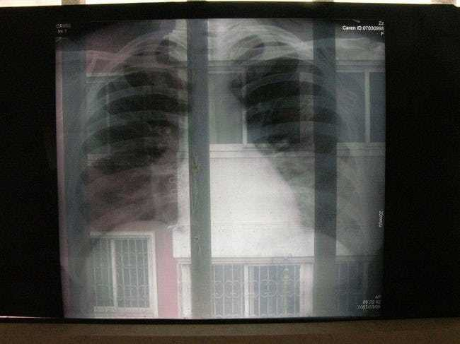 astronauts want to know what and 39 s happening to their lungs photo u1 w650q50fmjpgfitcropcropfaces