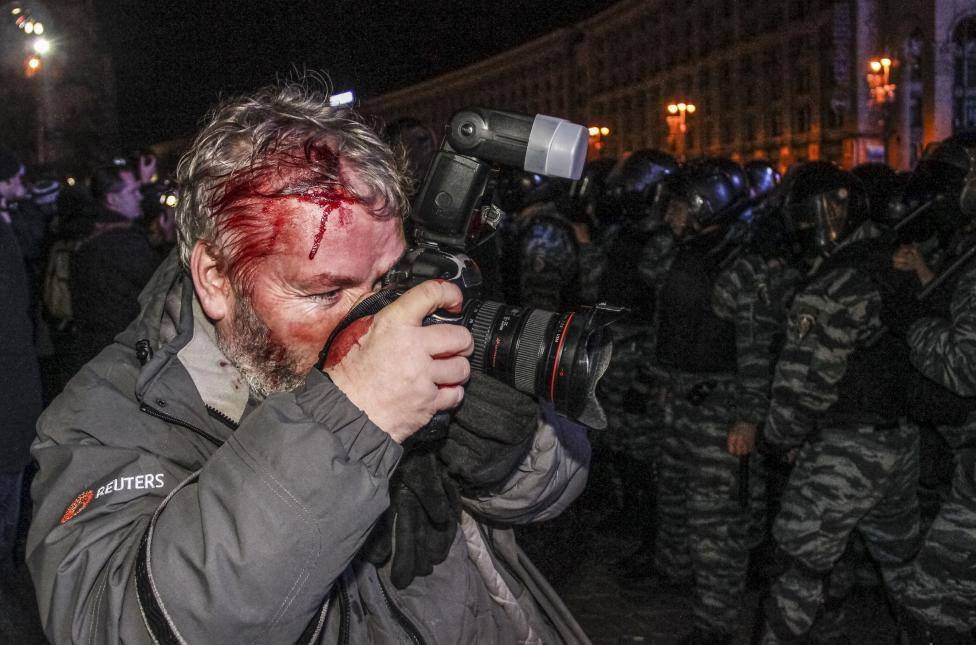 wounded reuters photographer gleb garanich who was injured by riot police