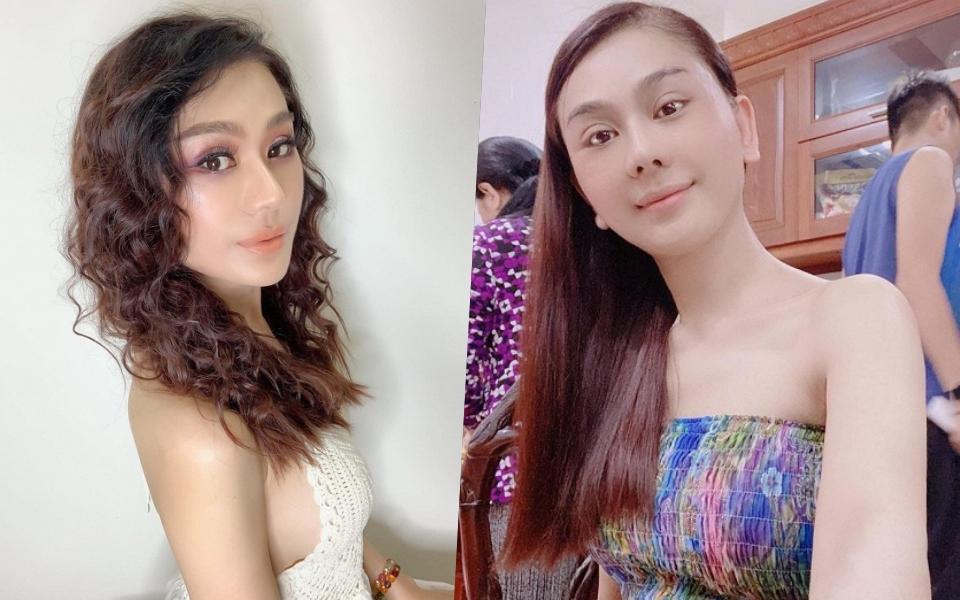 Hình ảnh lạ lẫm của Lâm Khánh Chi sau 2 tháng phẫu thuật thẩm mỹ