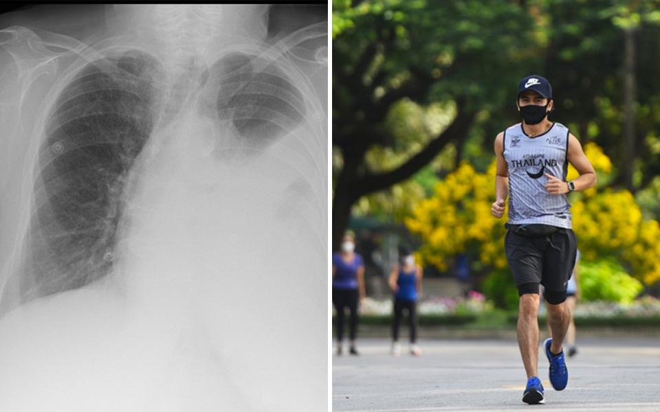 Thanh niên bị thủng phổi vì thường xuyên mang khẩu trang khi chạy bộ