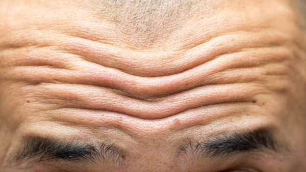 andrew fischers forehead 1532360678