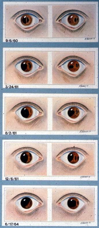progressive iris changes in riegers 2
