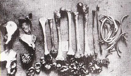 haarmann bones