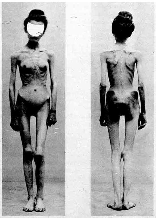 anorexia case 1900