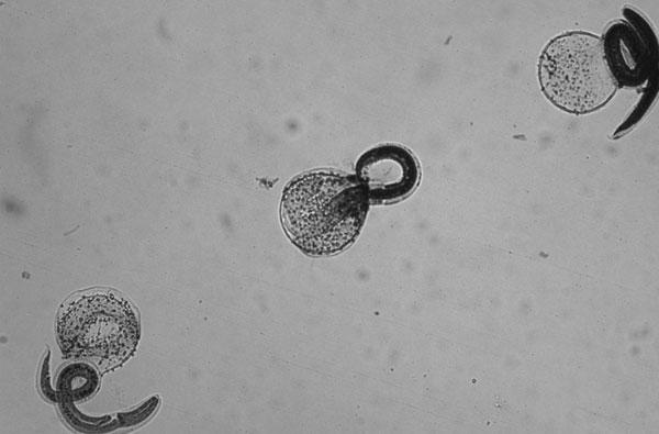 baylisascaris larvae